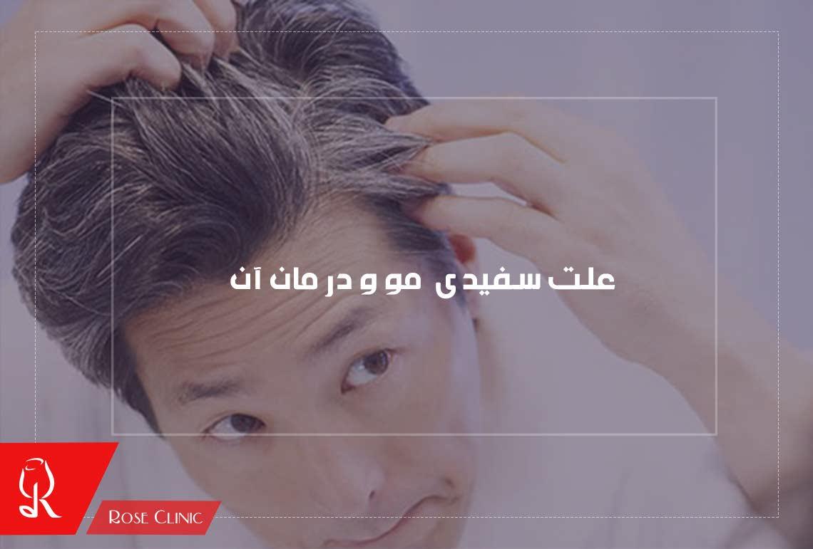 تصویر از علت سفیدی مو و درمان آن
