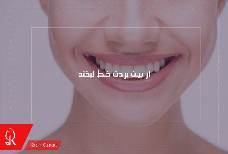 راهکارهای از بین بردن خط لبخند