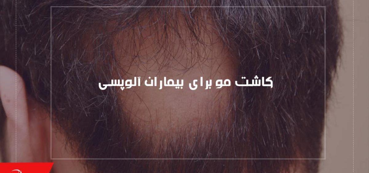 کاشت مو برای بیماران آلوپسی