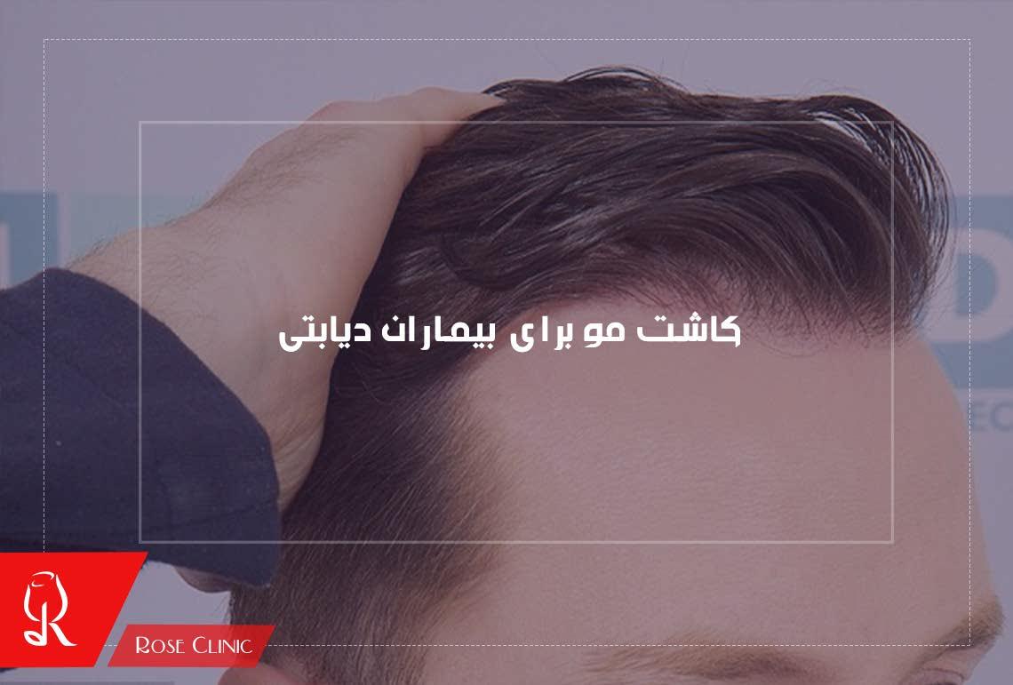 تصویر از کاشت مو برای بیماران دیابتی