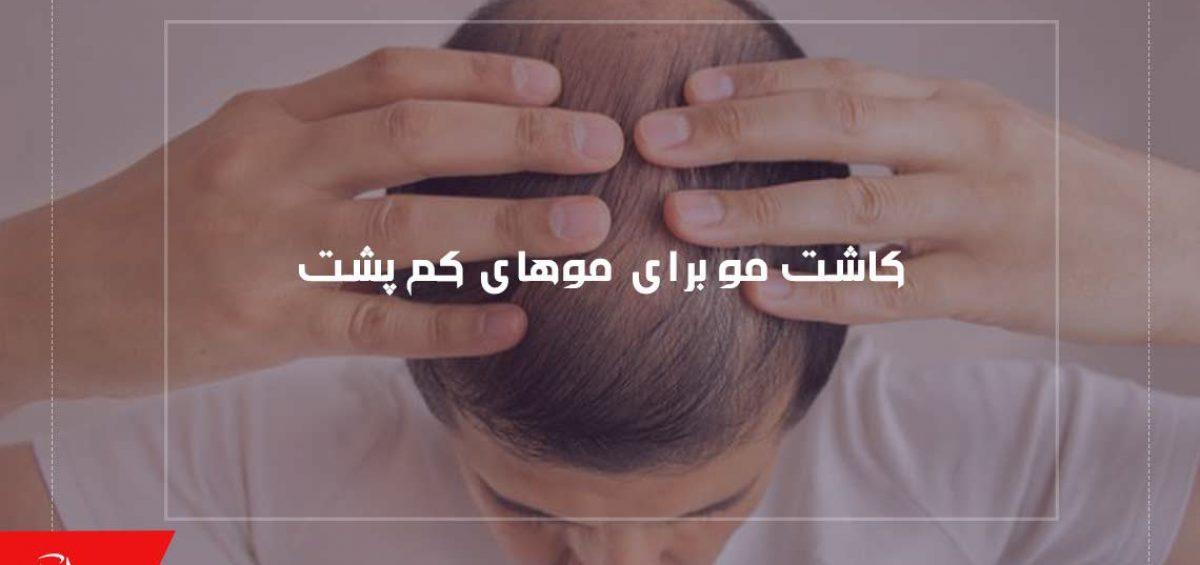 کاشت مو برای موهای کم پشت