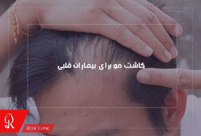 کاشت مو برای بیماران قلبی