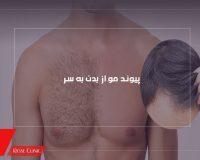 پیوند مو از بدن به سر