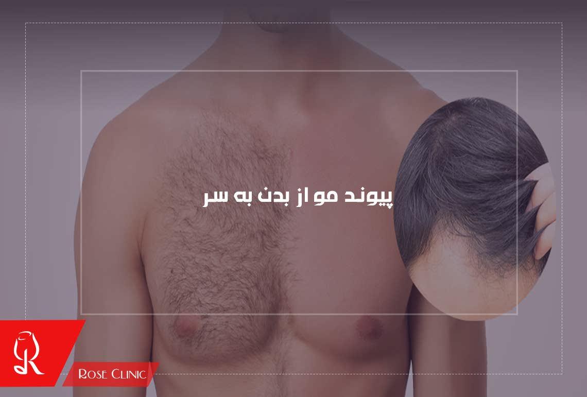 تصویر از پیوند مو از بدن به سر چگونه صورت می گیرد؟