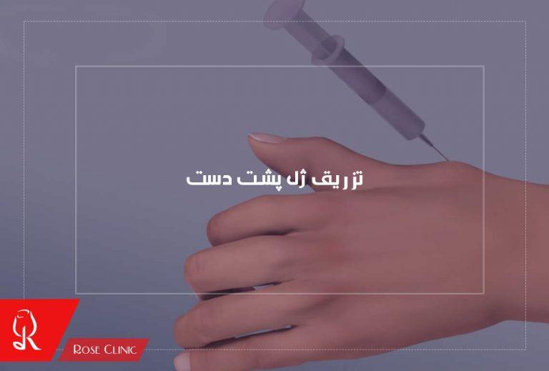 تزریق ژل پشت دست