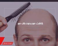 کاشت مو بدون بانک مو