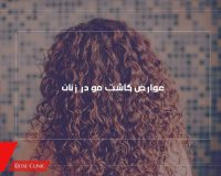 عوارض کاشت مو در زنان