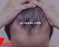 کاشت مو بدون درد
