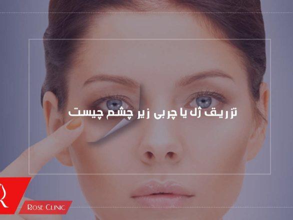تزریق ژل یا چربی زیر چشم چیست