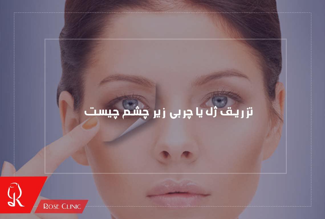 تصویر از تزریق ژل یا چربی زیر چشم چیست ؟