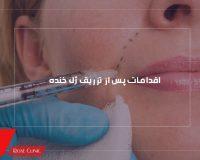 اقدامات پس از تزریق ژل خنده