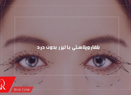 عمل بلفاروپلاستی با لیزر بدون درد و خون ریزی