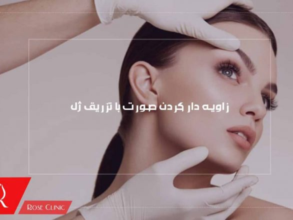 زاویه دار کردن صورت با تزریق ژل