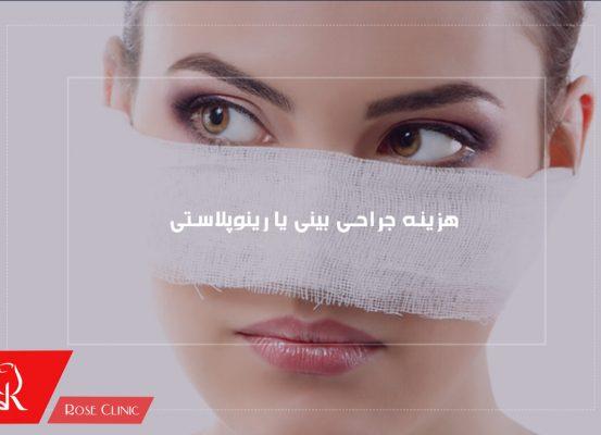 هزینه جراحی بینی یا رینوپلاستی