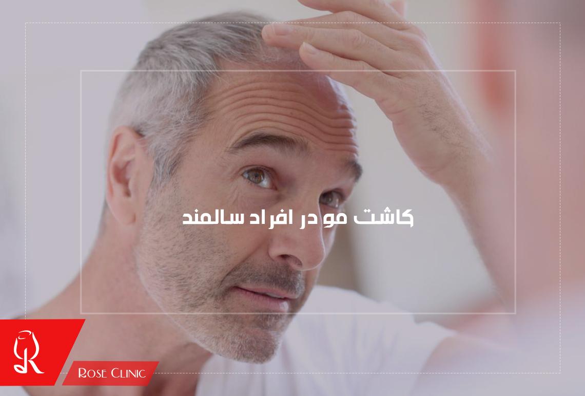 کاشت مو در افراد سالمند