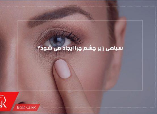 سیاهی زیر چشم چرا ایجاد می شود؟