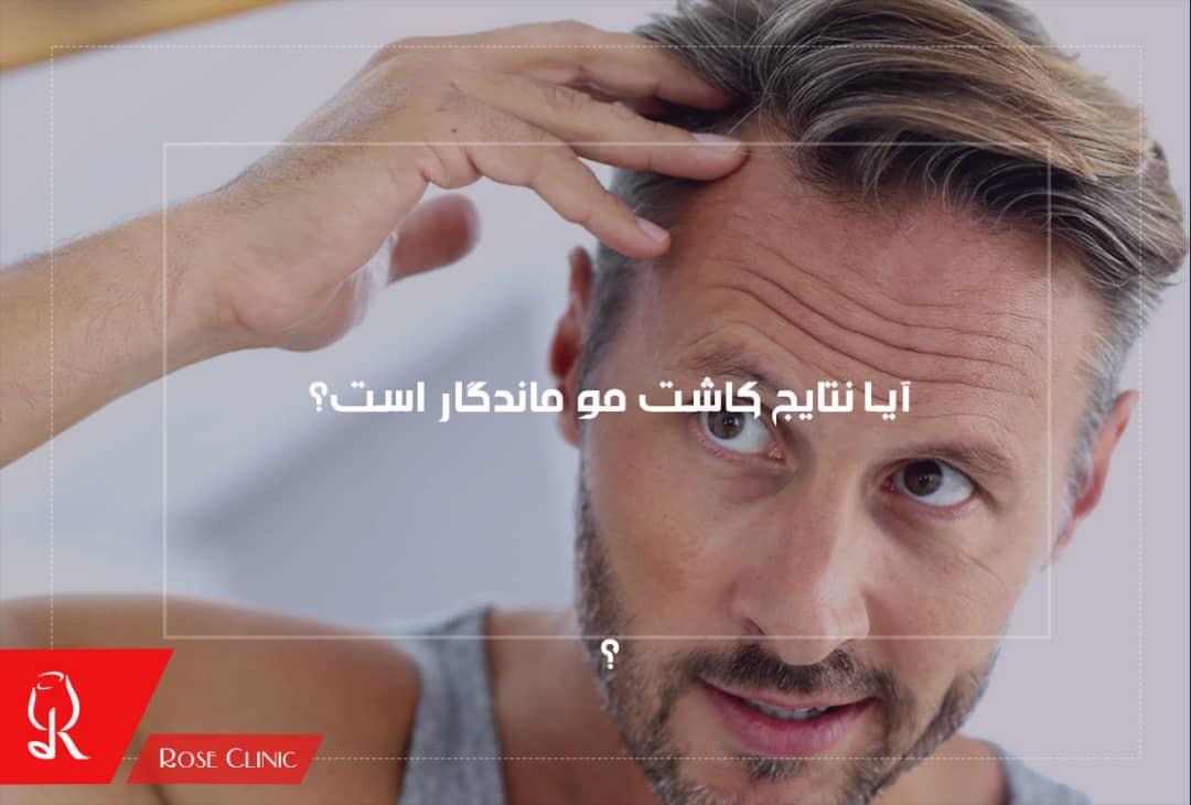 تصویر از آیا نتایج کاشت مو ماندگار است؟