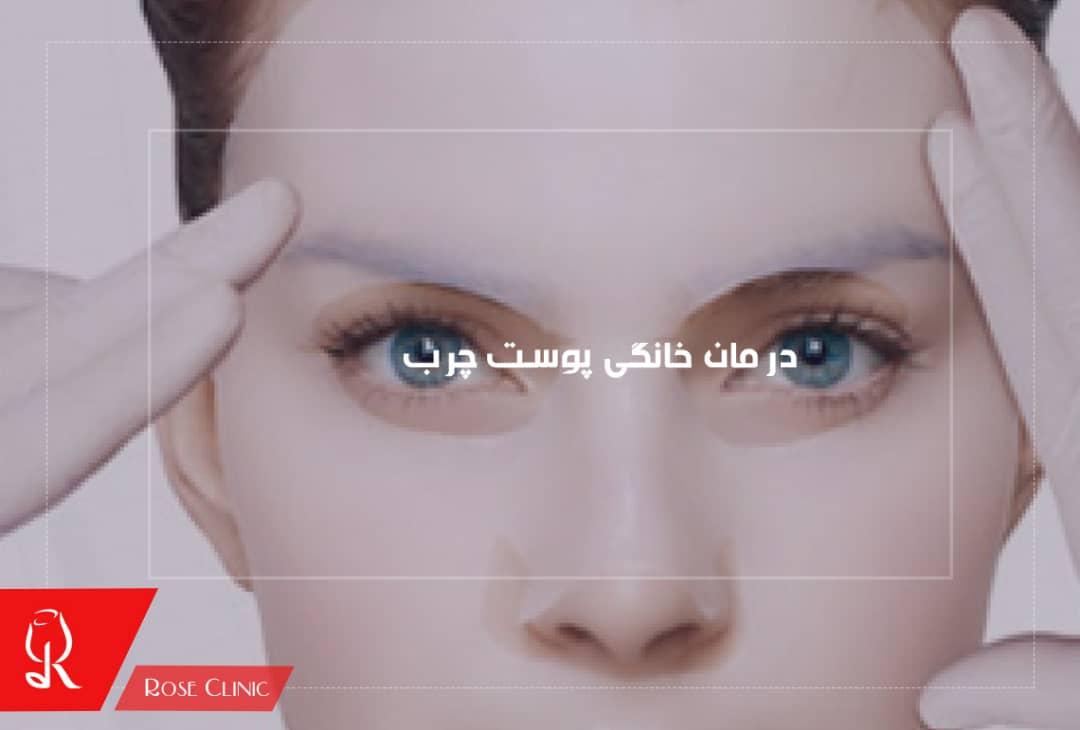 تصویر از درمان خانگی پوست چرب