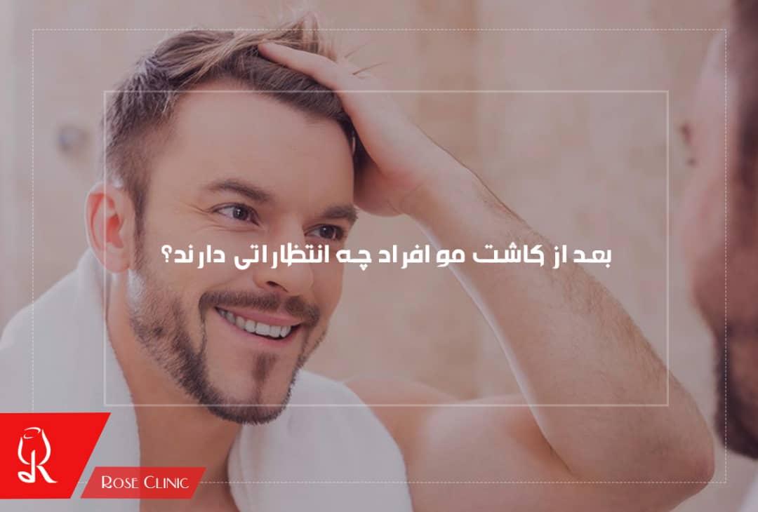 تصویر از بعد از کاشت مو افراد چه انتظاراتی دارند؟
