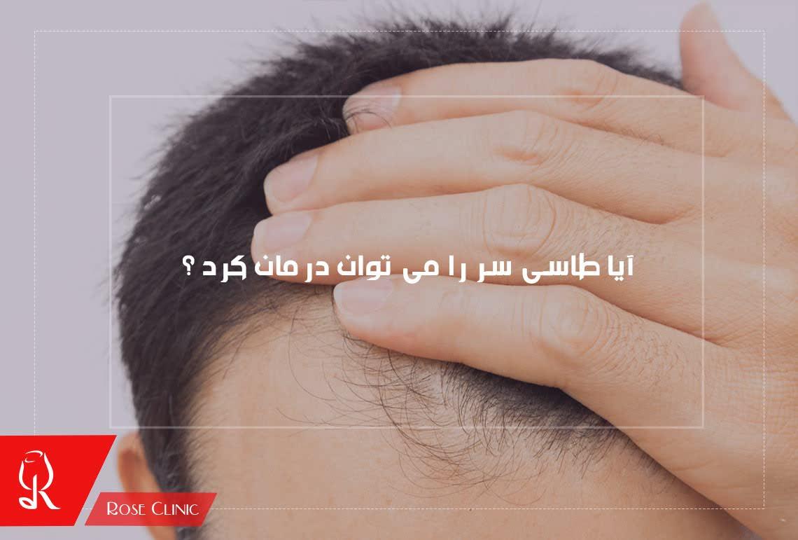 تصویر از آیا طاسی سر را می توان درمان کرد ؟