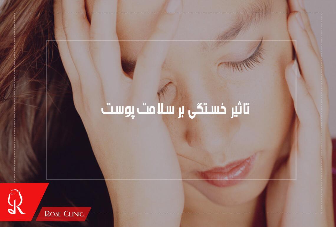 تصویر از تاثیر خستگی بر سلامت پوست