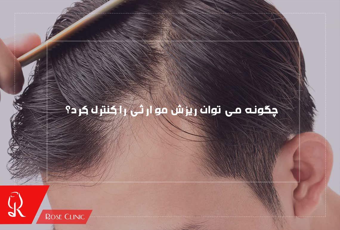 چگونه می توان ریزش مو ارثی را کنترل کرد؟