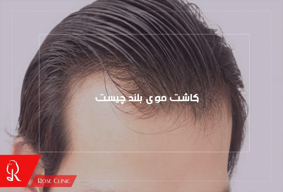 کاشت مو بلند چیست ؟