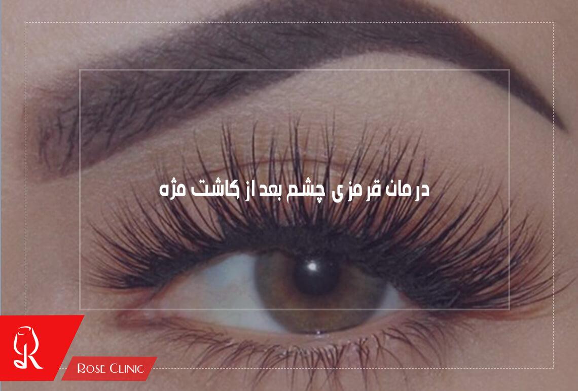 تصویر از درمان قرمزی چشم بعد از کاشت مژه