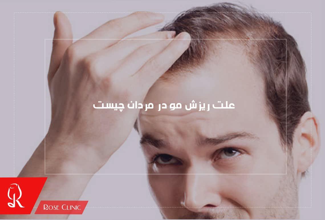علت ریزش مو در مردان چیست