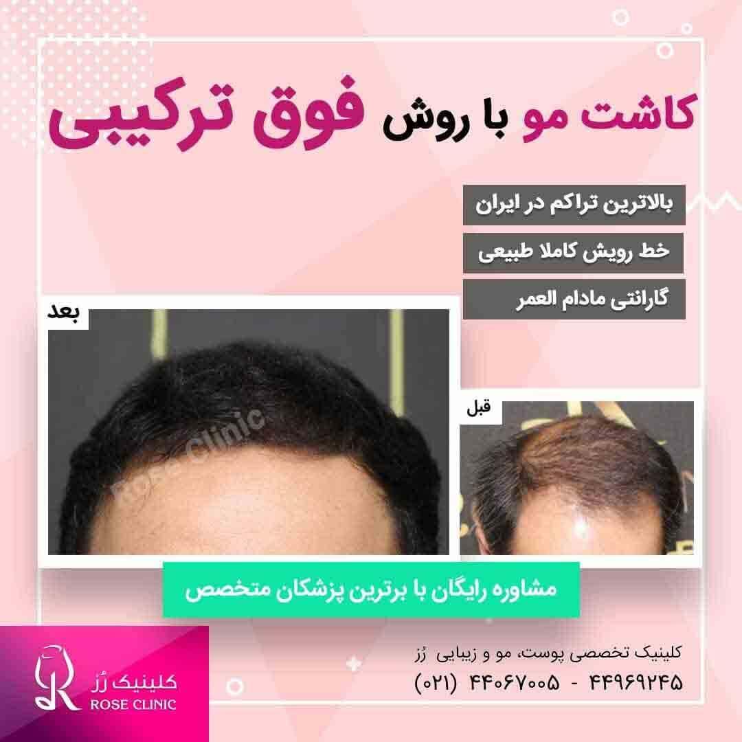 عکس کاشت مو در کلینیک پوست و مو رز