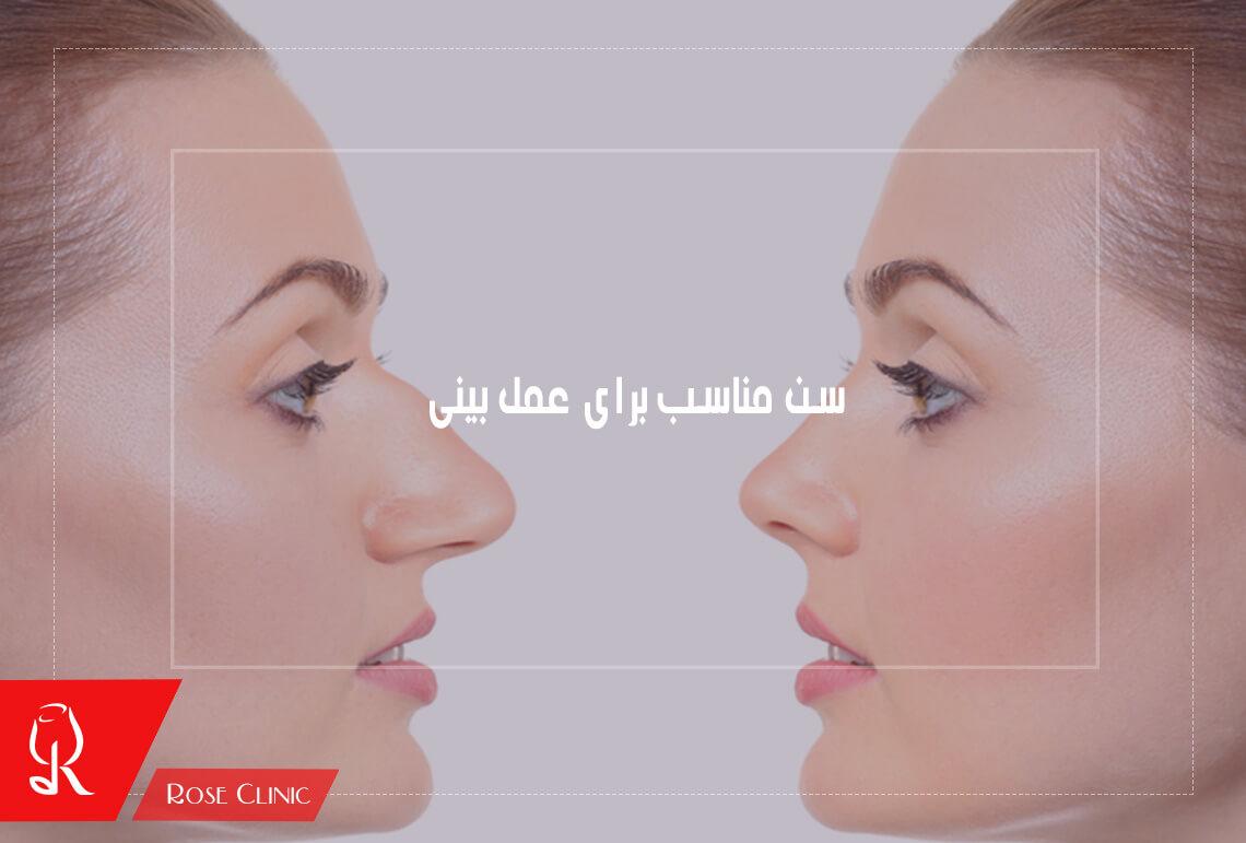 تصویر از سن مناسب برای عمل بینی