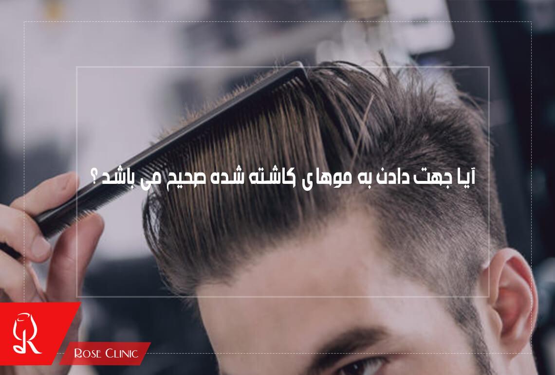 آیا جهت دادن به موهای کاشته شده صحیح می باشد