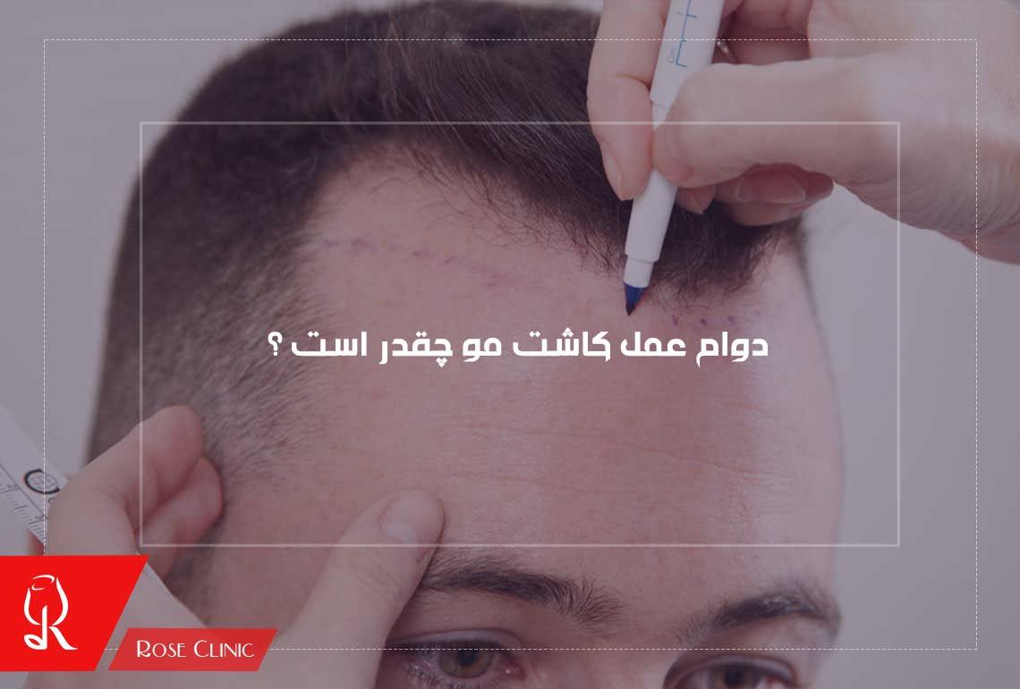 تصویر از دوام عمل کاشت مو چقدر است ؟