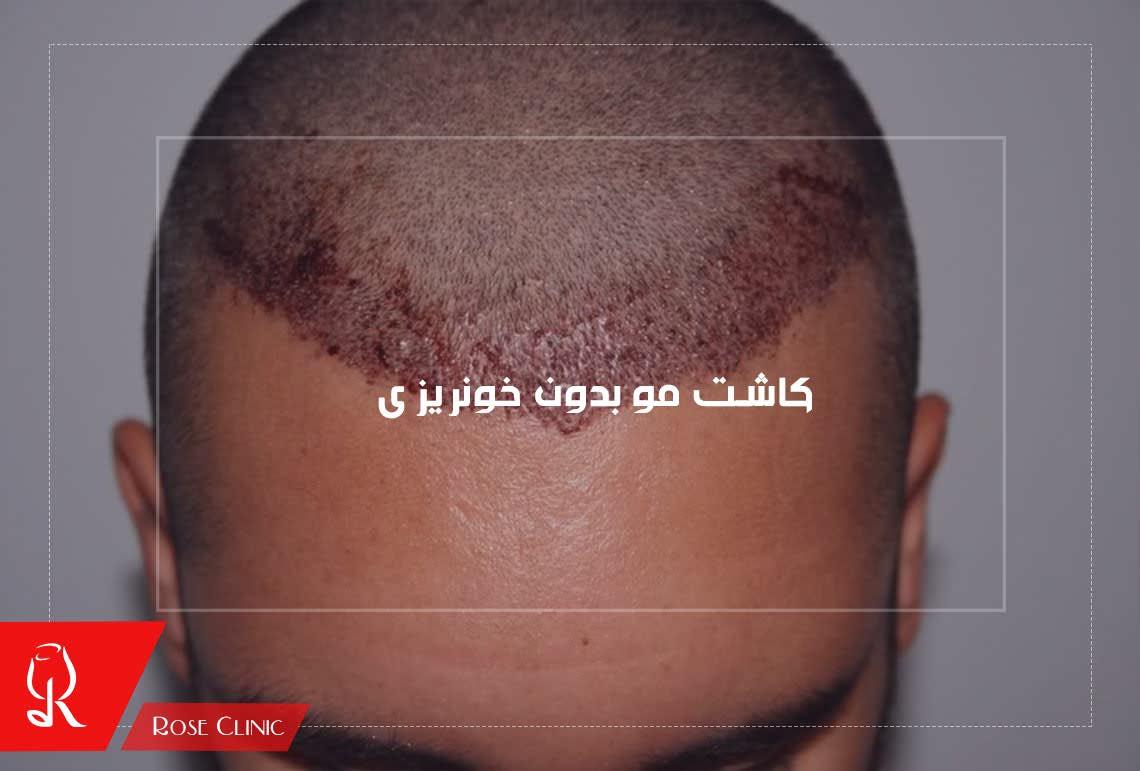 کاشت مو بدون خونریزی