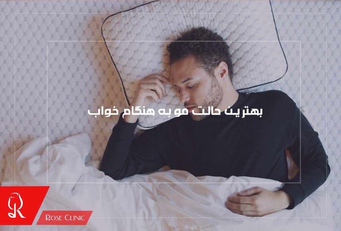 تصویر از بهترین حالت مو به هنگام خواب