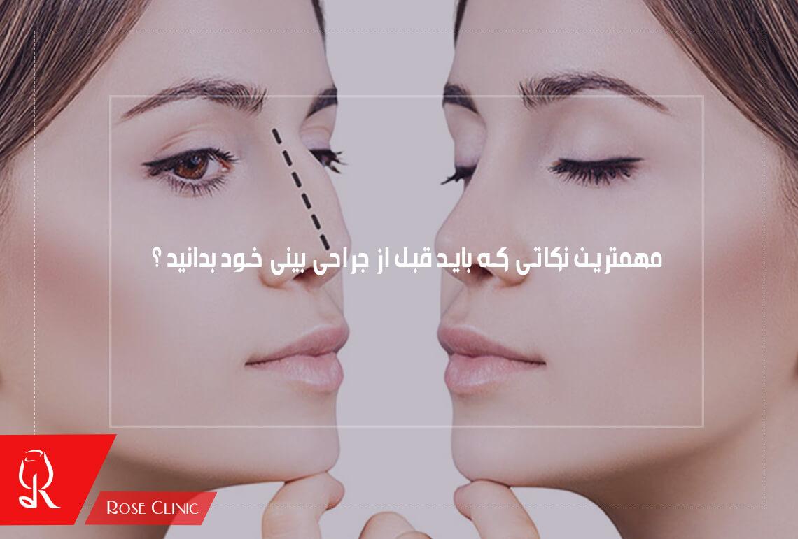 تصویر از مهمترین نکاتی که باید قبل از جراحی بینی خود بدانید ؟