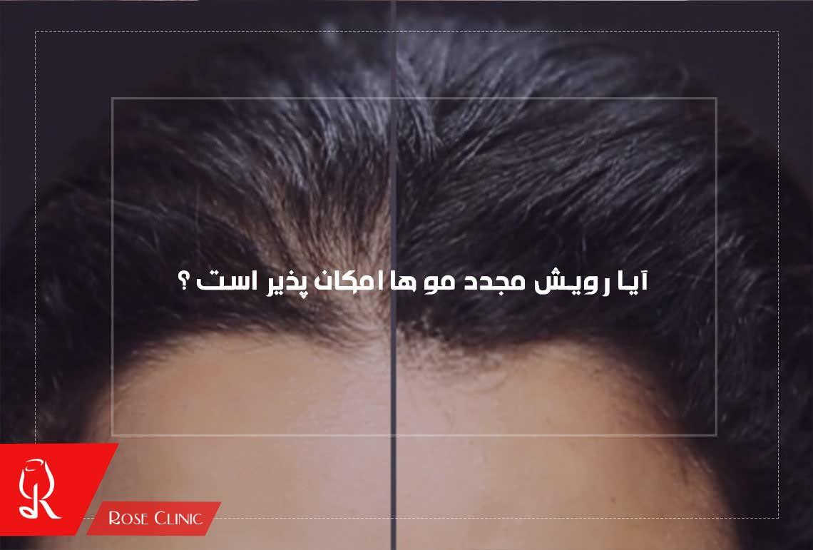 تصویر از آیا رویش مجدد مو ها امکان پذیر است ؟