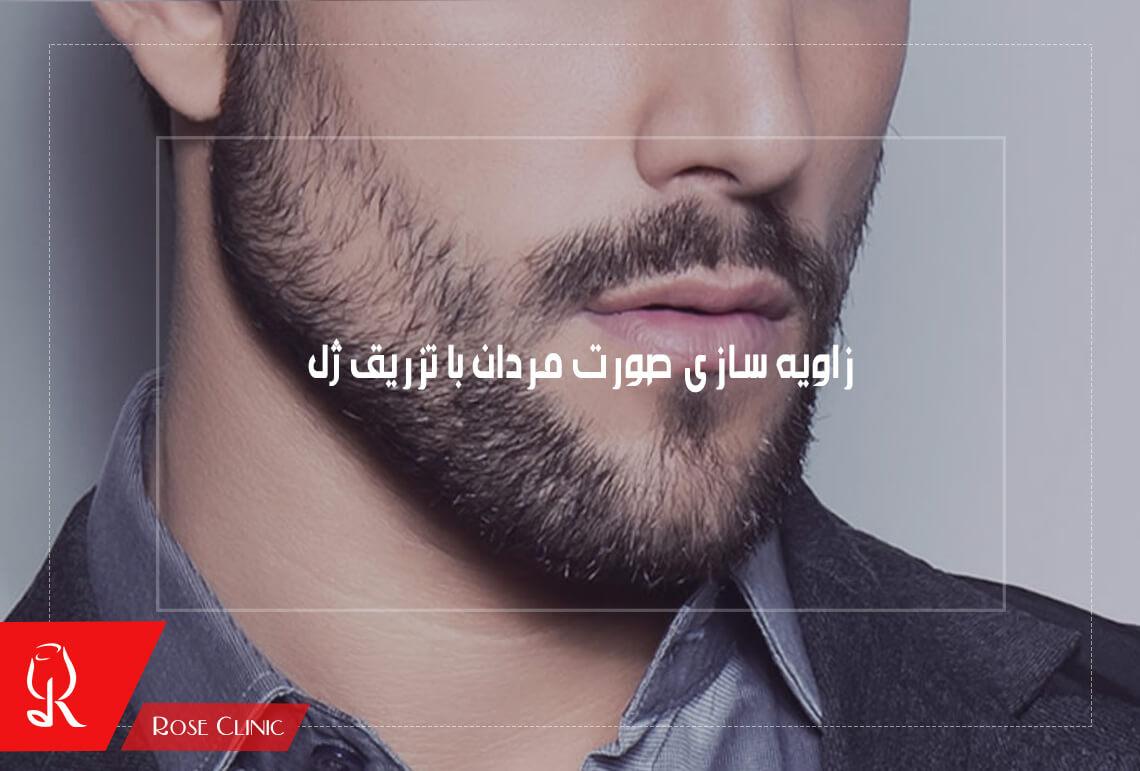 زاویه سازی صورت مردان با تزریق ژل