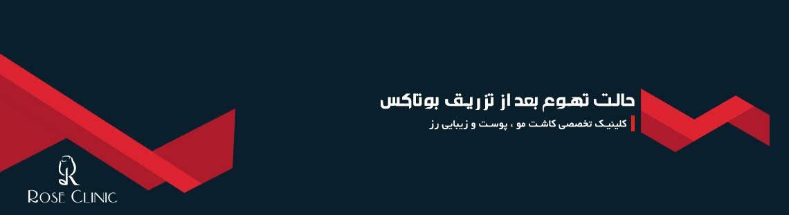 حالت تهوع بعد از تزریق بوتاکس