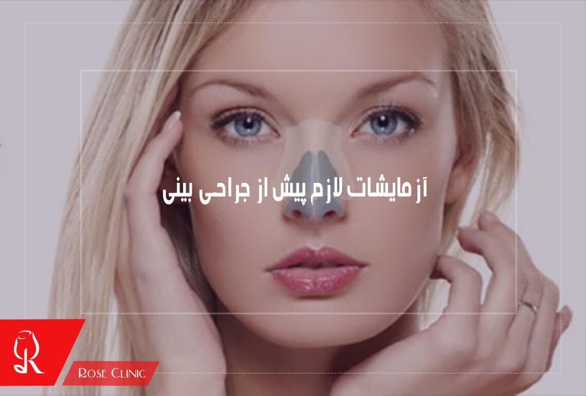 تصویر از آزمایشات لازم پیش از جراحی بینی