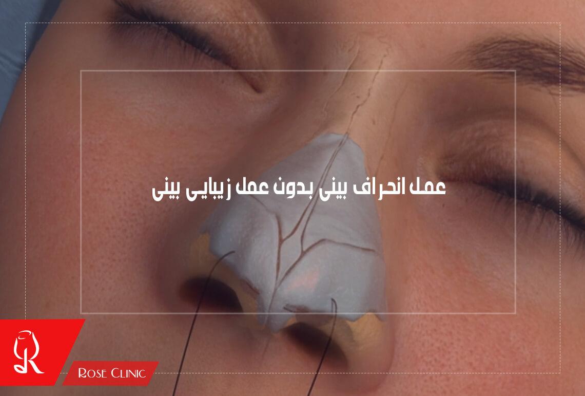 عمل انحراف بینی بدون عمل زیبایی
