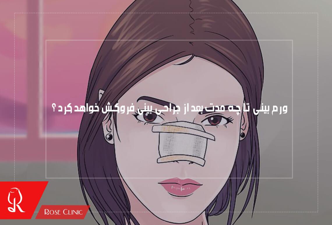 تصویر از ورم بینی تا چه مدت بعد از جراحی بینی از بین می رود ؟