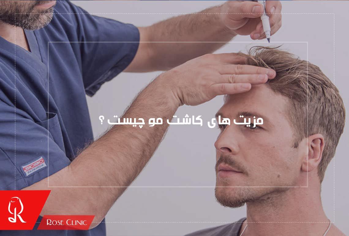 تصویر از مزیت های کاشت مو چیست ؟