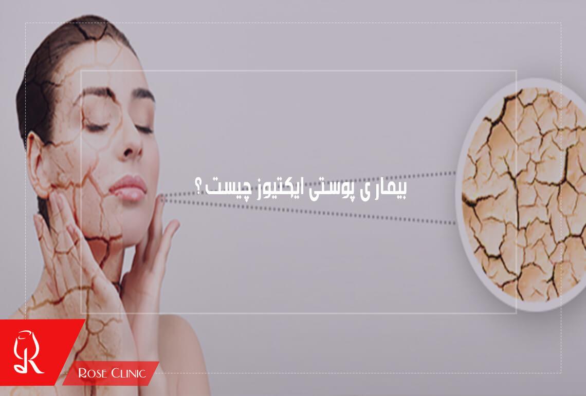 تصویر از بیماری پوستی ایکتیوز چیست ؟