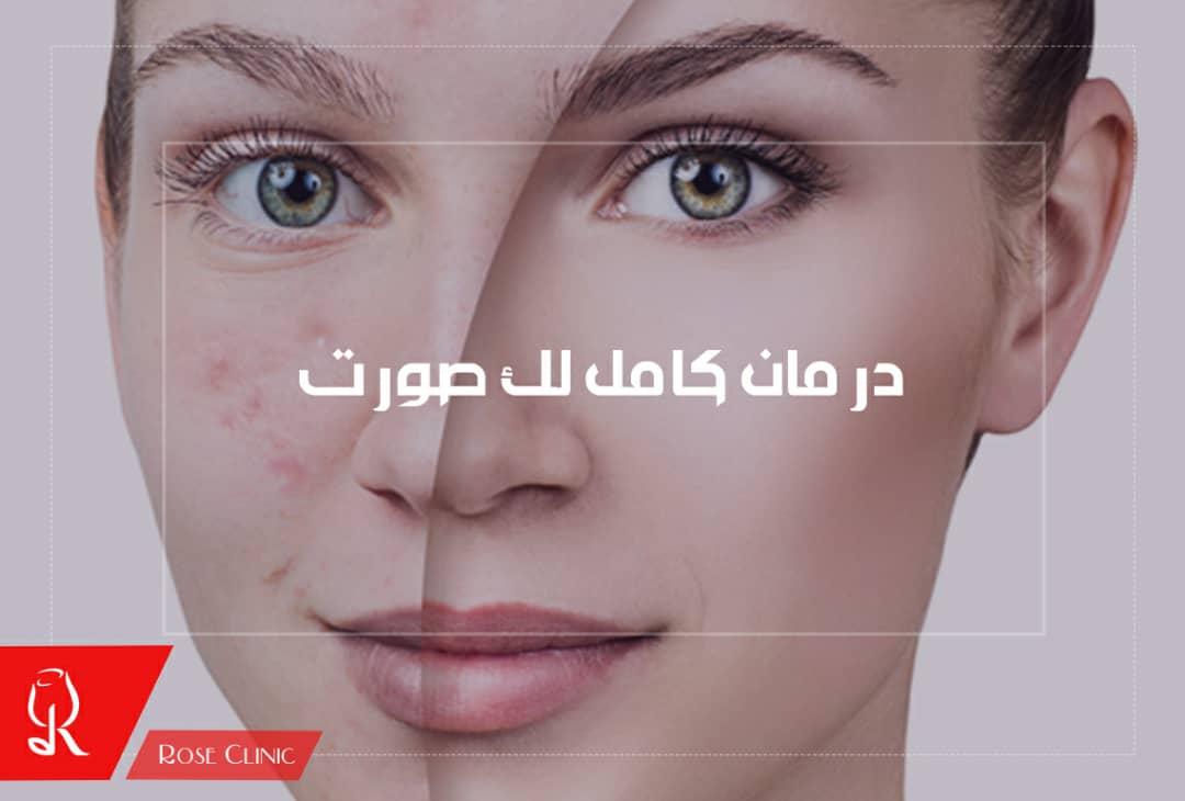 تصویر از درمان کامل لک صورت