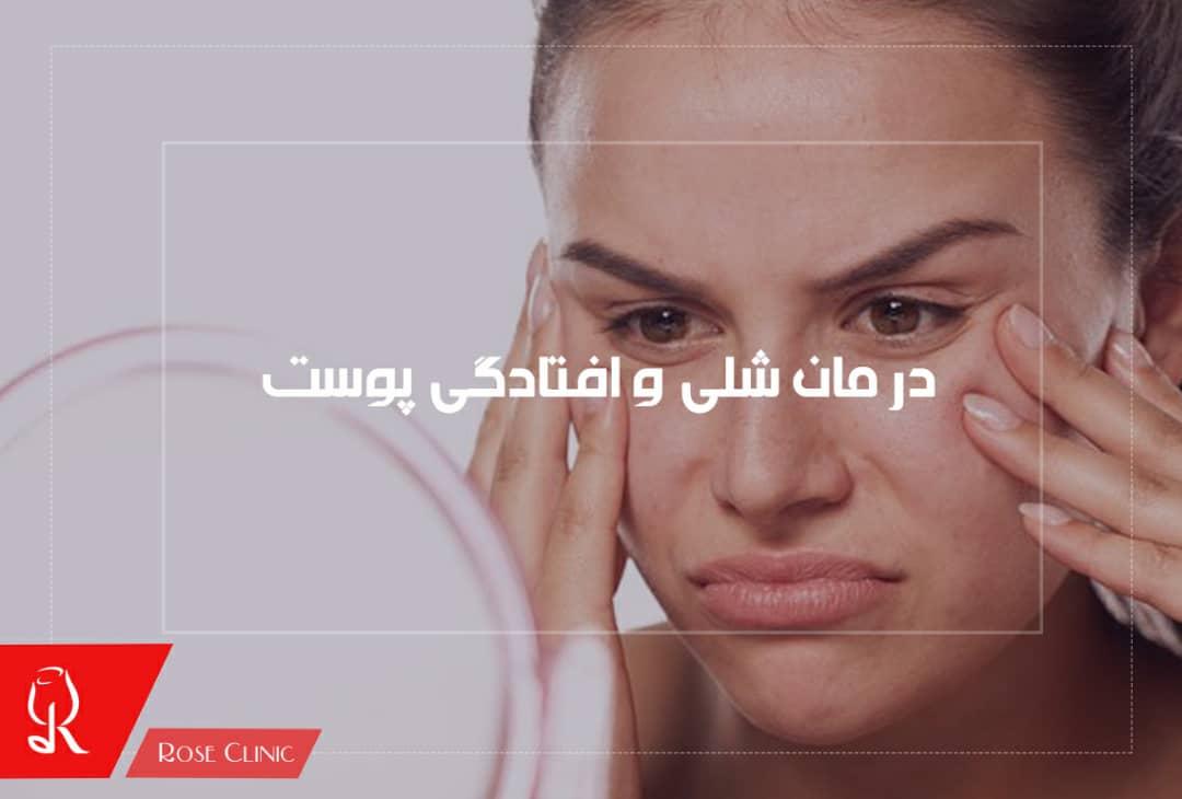 تصویر از درمان شلی و افتادگی پوست