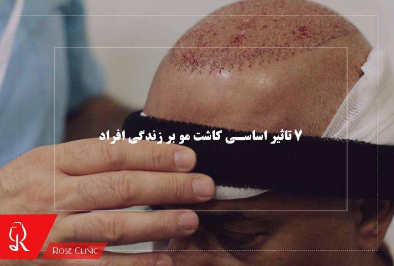 تصویر از 7 تاثیر اساسی کاشت مو بر زندگی افراد