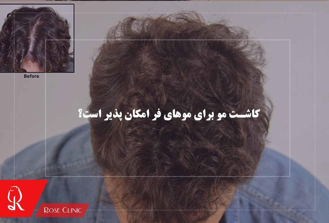 تصویر از کاشت مو برای موهای فر امکان پذیر است؟