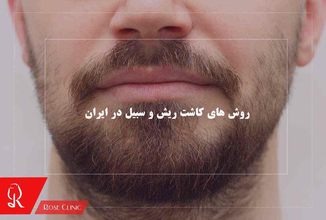 تصویر از روش های کاشت ریش و سبیل در ایران