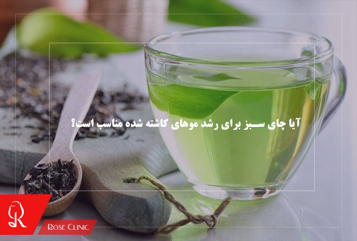تصویر از آیا چای سبز برای رشد موهای کاشته شده مناسب است؟